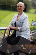 SCHICKSALE - Alopezie: Junge Frau leidet unter anhaltendem Haarverlust