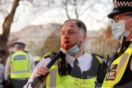 NEWS - Coronavirus: Polizisten in London mit blutigen Gesichtern, nachdem sie mit Flaschen und Ziegelsteinen angegriffen wurden