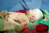 FEATURE - Blondschopf: Indische Mutter bringt ein sehr seltenes Albino-Kind zur Welt