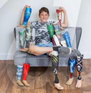 FEATURE - Hat einiges hinter sich: Brad Pradick (13) mit seiner Beinprothesensammlung
